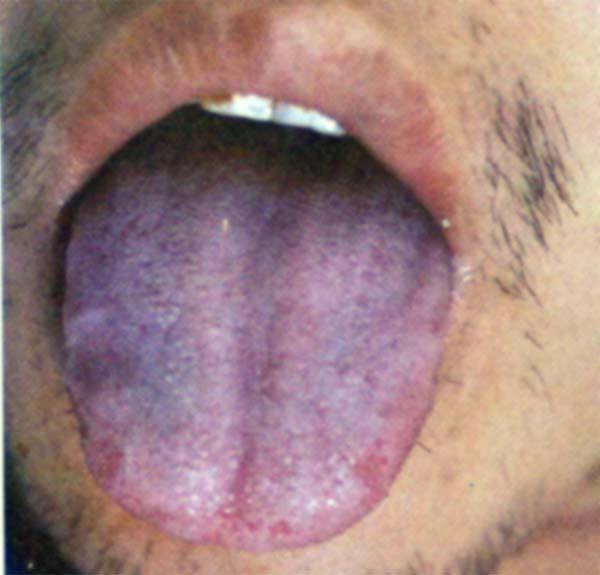 tache bleu sur la langue