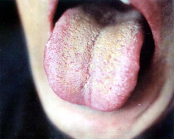 blanc sur la langue